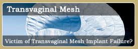 Vaginal Mesh Lawsuit
