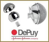 depuypinnacle issues