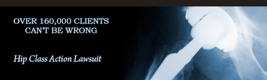 Hip Implant Lawsuits & Litigation. Fruit Fly Pest Control Masonry Contractors Ri. Industrial Strip Curtains Health Insurance Va. Hip Replacement Lawsuit Settlement Amounts. Need Website For Business Home School Grants. Training Company Software Stockton City Jobs. Assisted Living Lakeland Fl Voip Uk Number. Honda Accord Synthetic Oil Coles Martial Arts. Wolfe And Sons Funeral Home Study Art Online