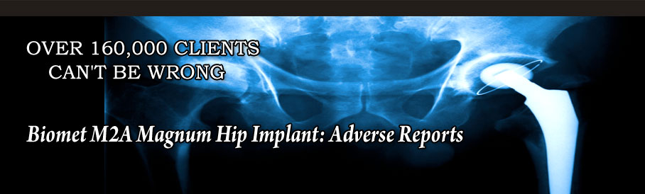 Biomet M2A Magnum Hip Implant: Adverse Reports